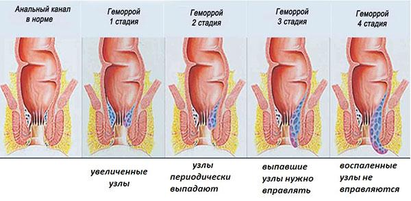 геморрой узлы как лечить